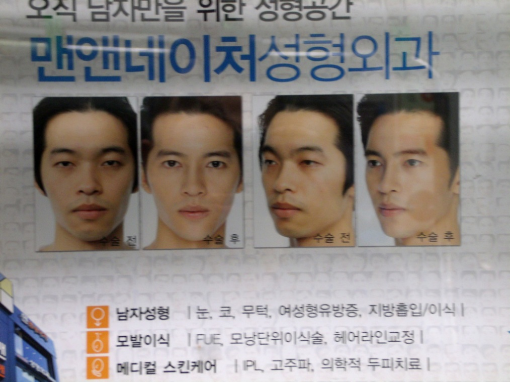 That's already a different person - South Korea plastic surgery