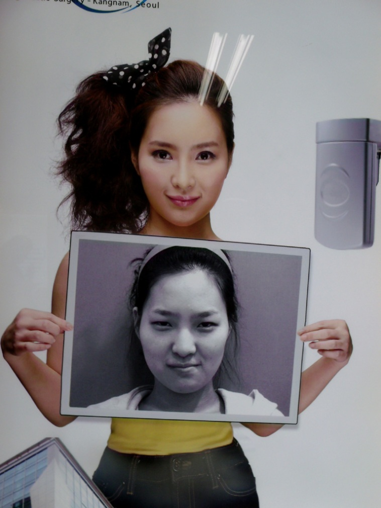 Unrecognizable! - South Korea plastic surgery